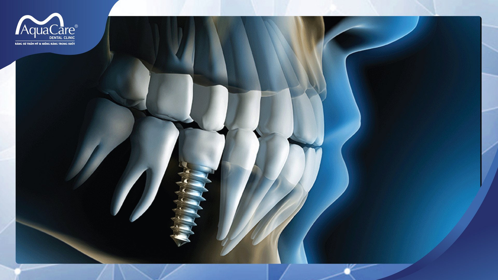 implant dưới màng xương