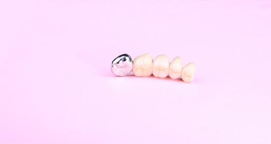 Sử dụng vật liệu nào để hàn răng?