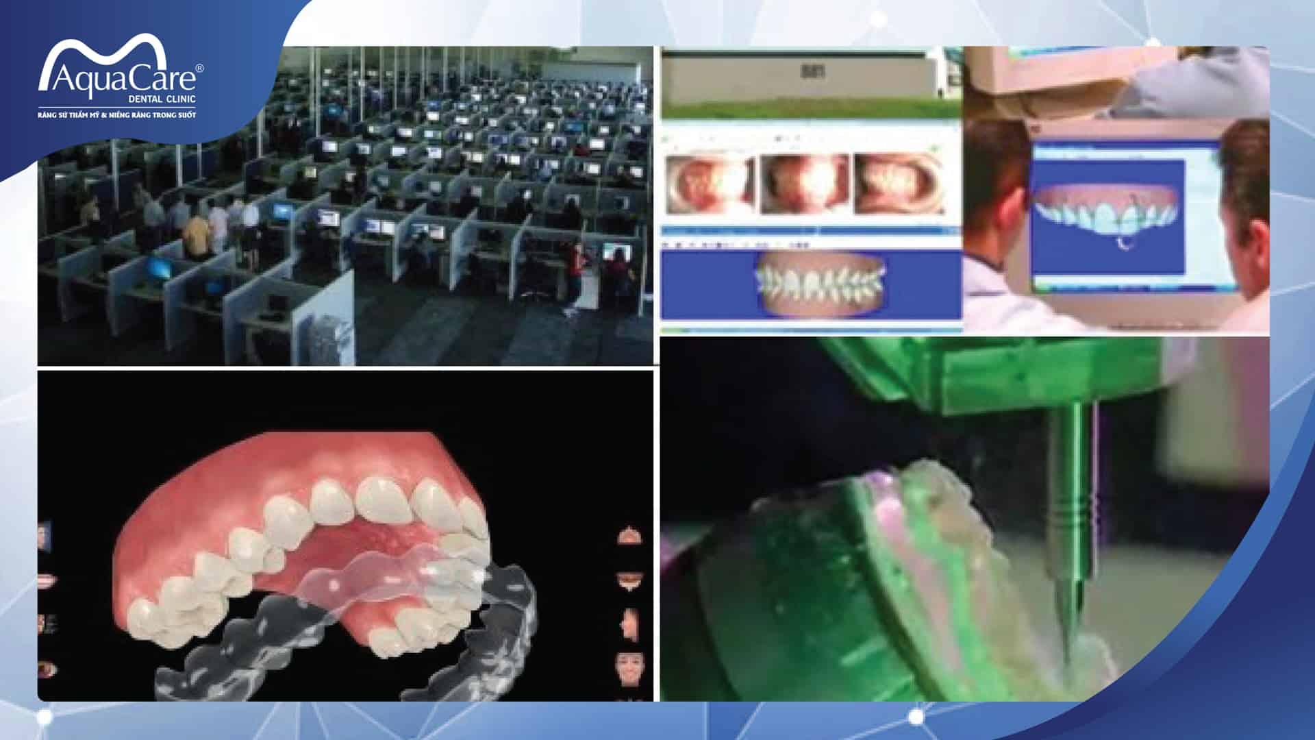 Tạo khay chỉnh răng