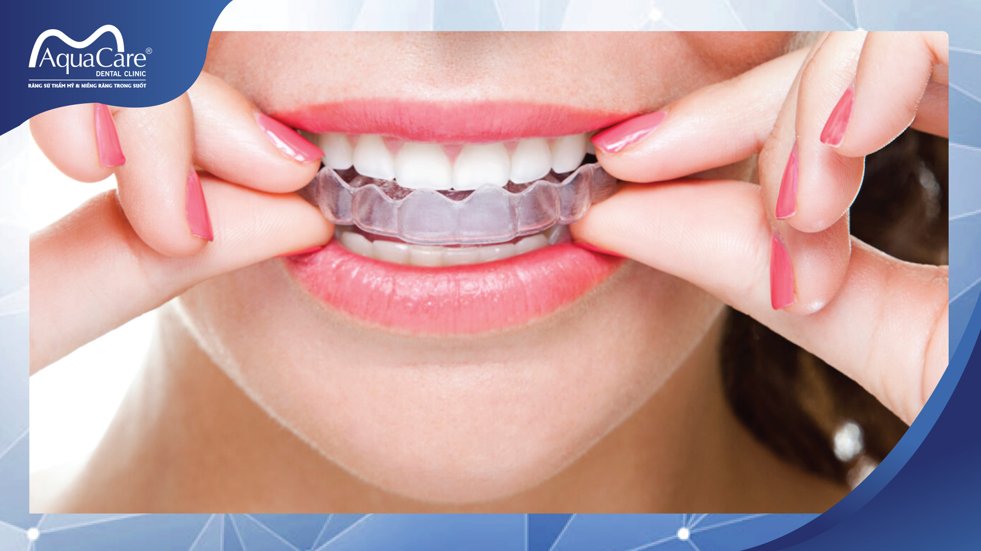đeo khay trong suốt Invisalign