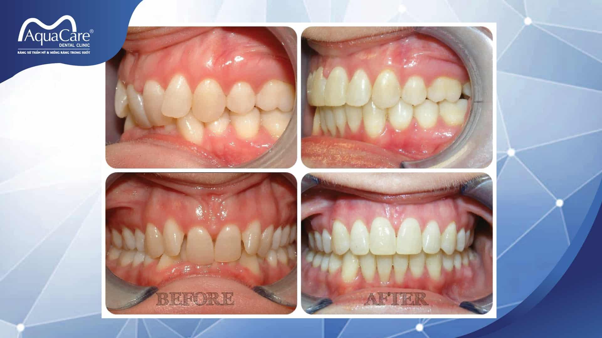 răng sai khớp cắn