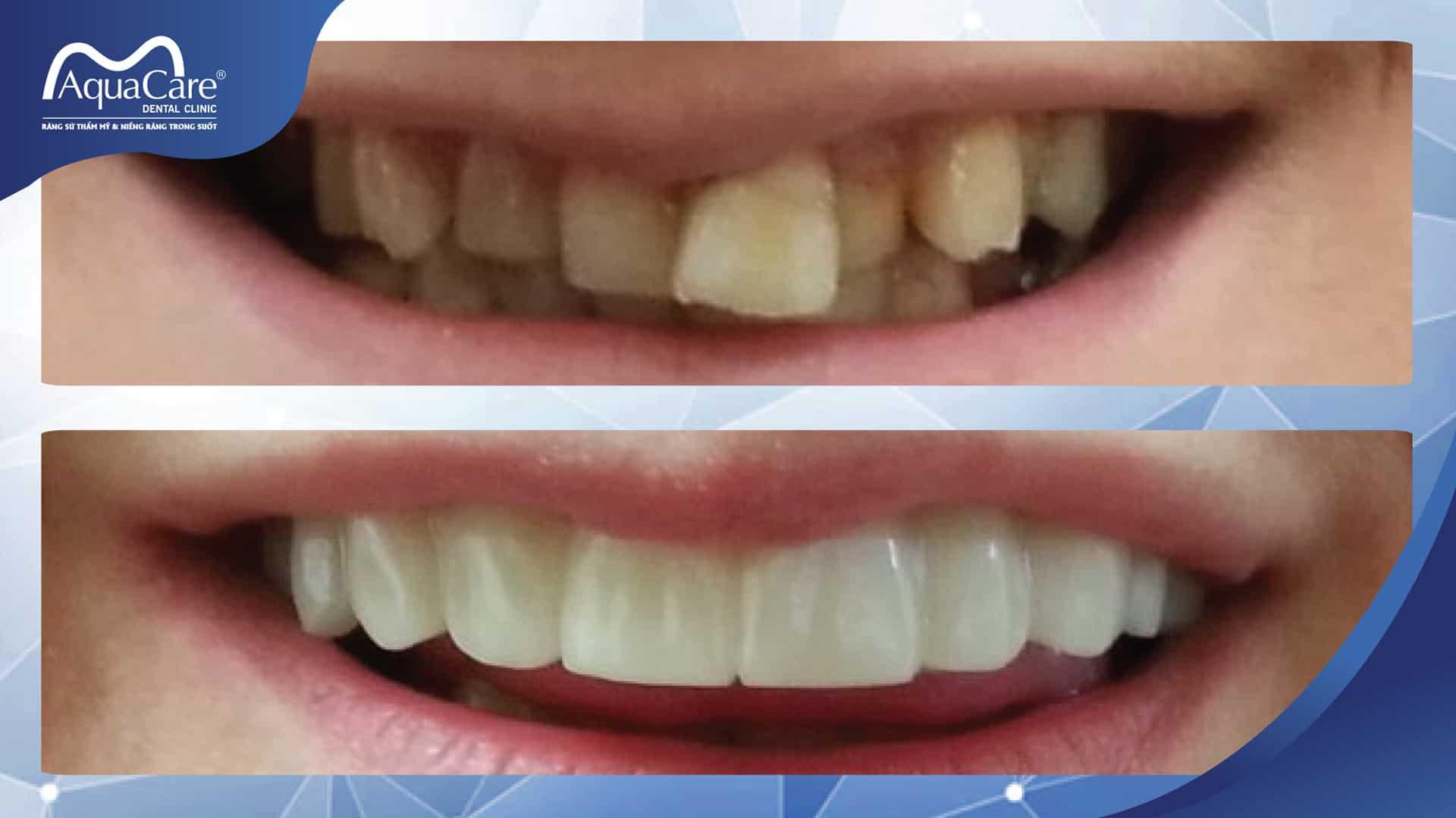 răng khấp khểnh