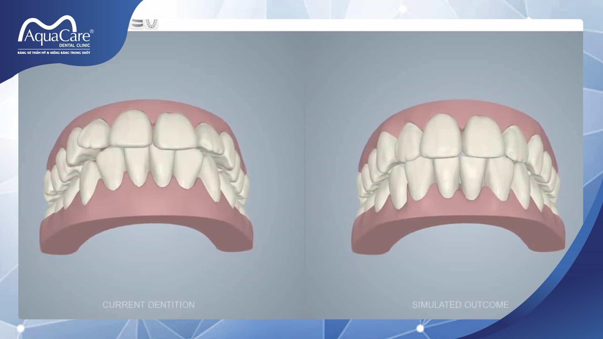 thấy trước kết quả điều trị với niềng răng không mắc cài