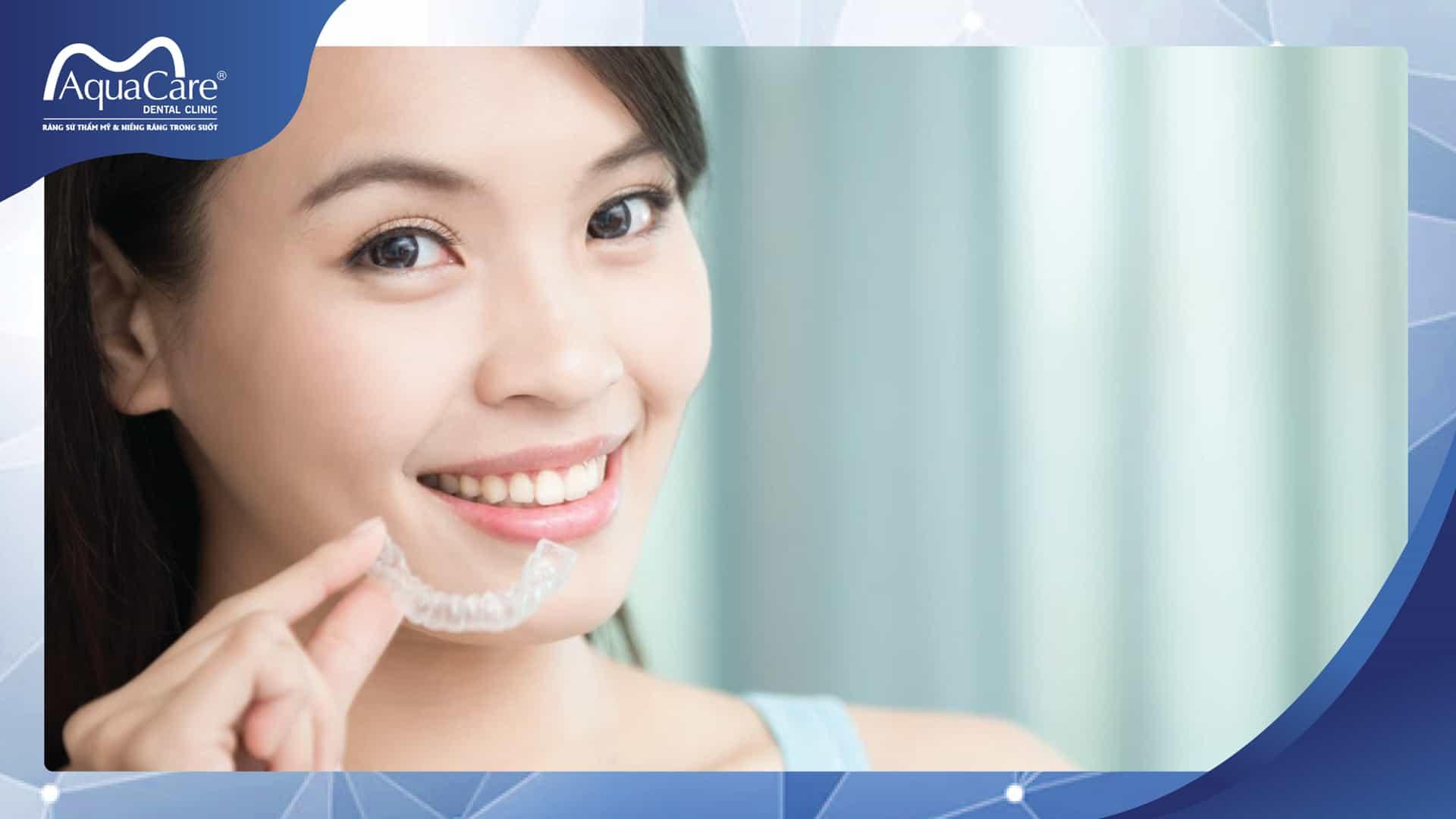 10 lý do nên niềng răng không mắc cài