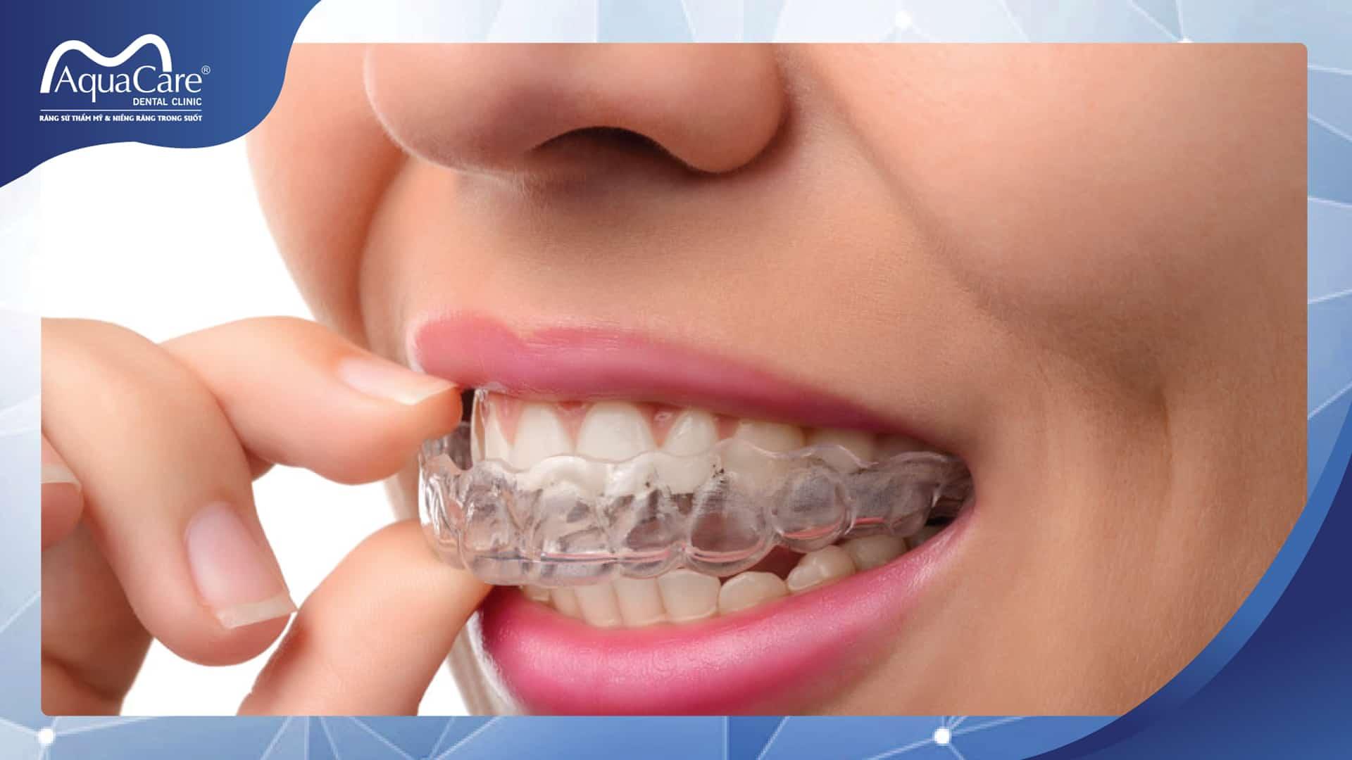 thuận tiện khi sử dụng niềng răng không mắc cài