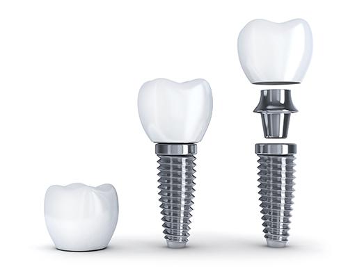 Cấu trúc implant