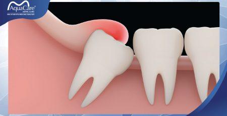 răng khôn là gì