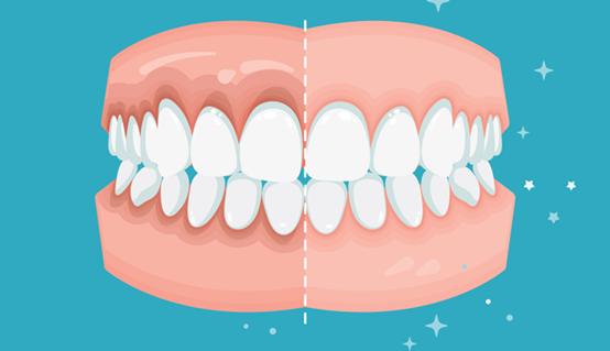 Cách chăm sóc răng miệng sau khi điều trị nội nha