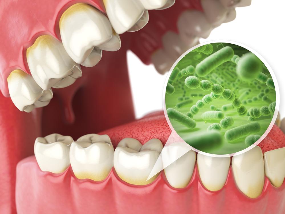 ngăn chặn bệnh răng miệng